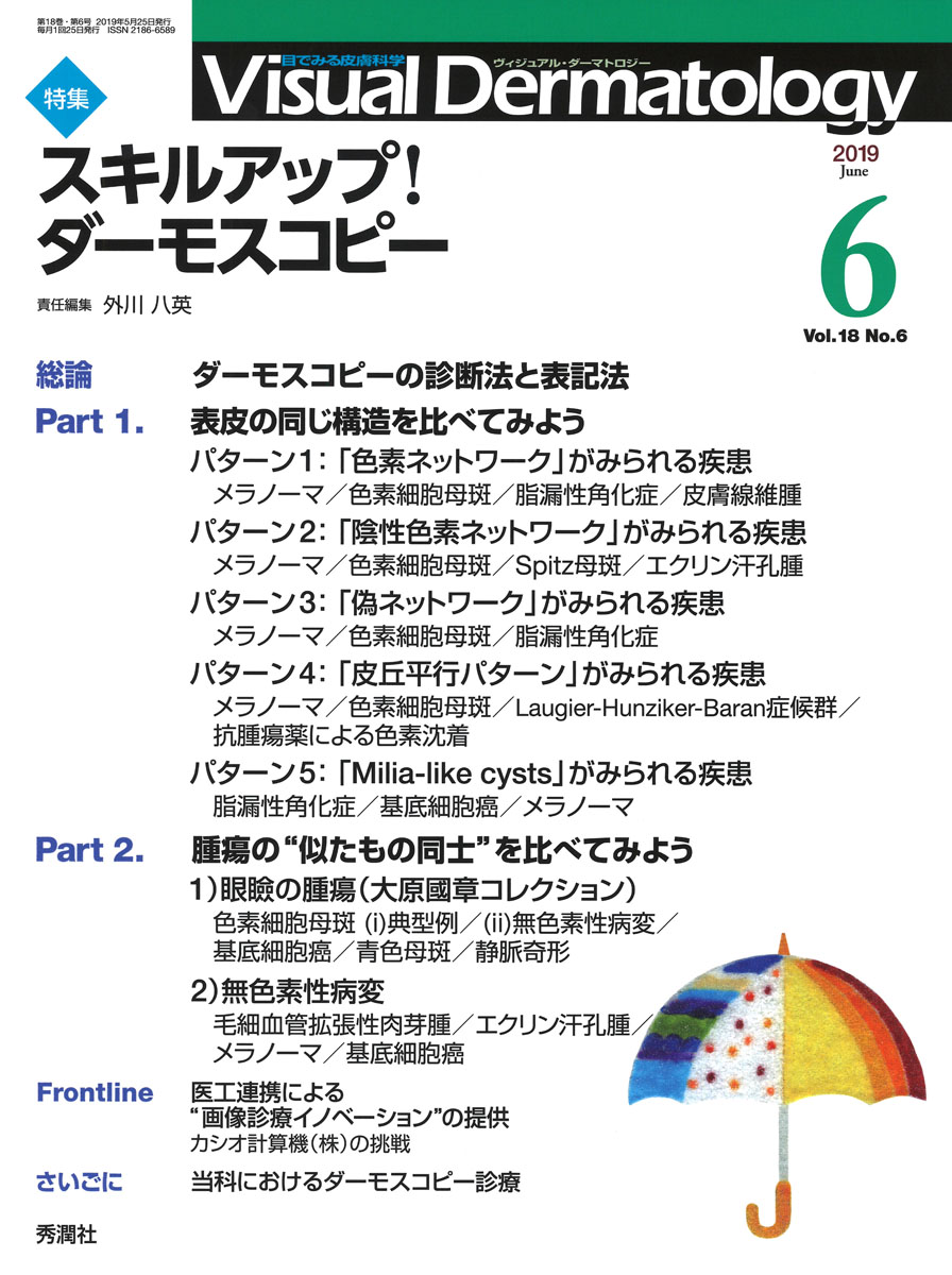 Visual.Dermatology『Visual D. 2019年6月号 Vol.18 No.6』