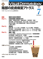 Visual.Dermatology『Visual D. 2020年7月号 Vol.19 No.7』